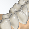 Real-Time Rendering of Teeth with No Preprocessing